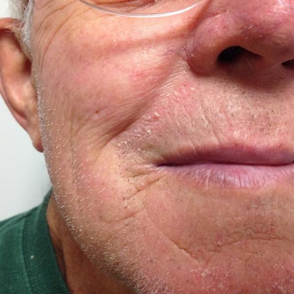Seborrheic Dermatitis (dandruff)